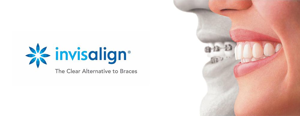 Invisalign | Austin Dentist