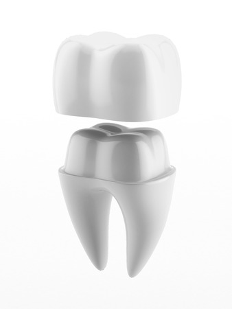 Dental Crown - Matt Horne DDS